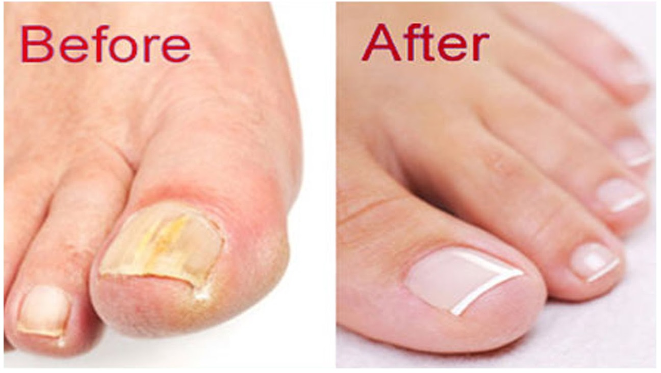 Image result for rid of your fungal nails